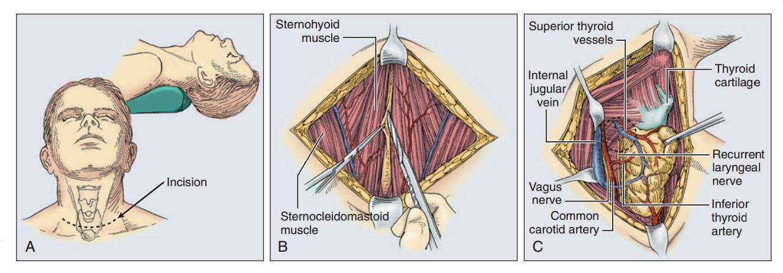 первые этапы удаления рака щитовидной железы
