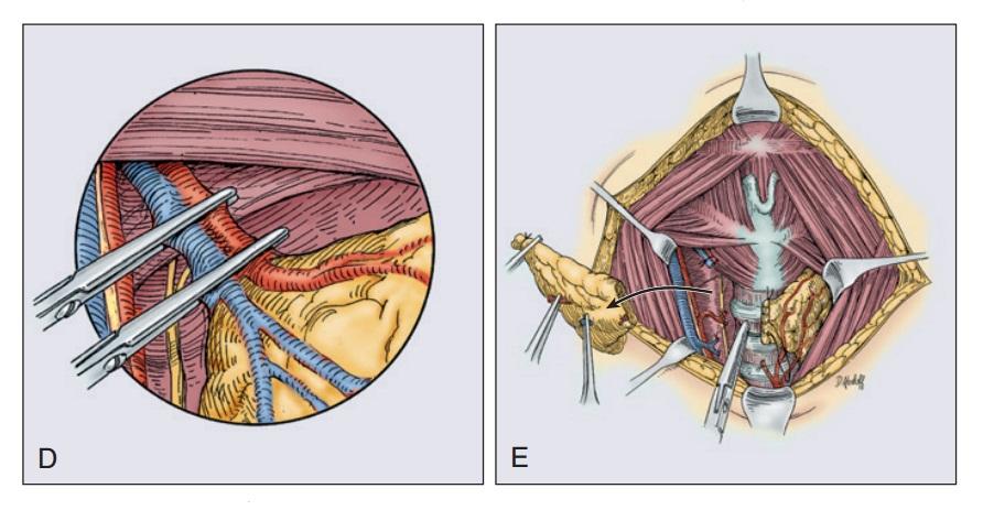 заключительные этапы удаления рака щитовидной железы